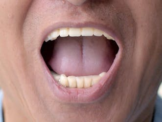 man talking about helping family who've had new dentures fitted