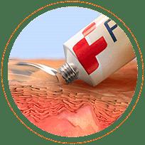 Ikona - substancja czynna Fenistilu, maleinian dimetindenu, jest sprawdzonym składnikiem leków przeciwhistaminowych, stosowanym od ponad 50 lat.