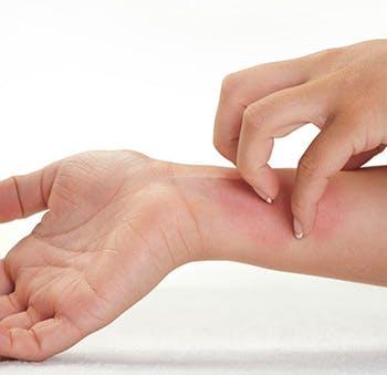 Uszkodzenie skóry wywołuje naturalny proces zwany stanem zapalnym.
