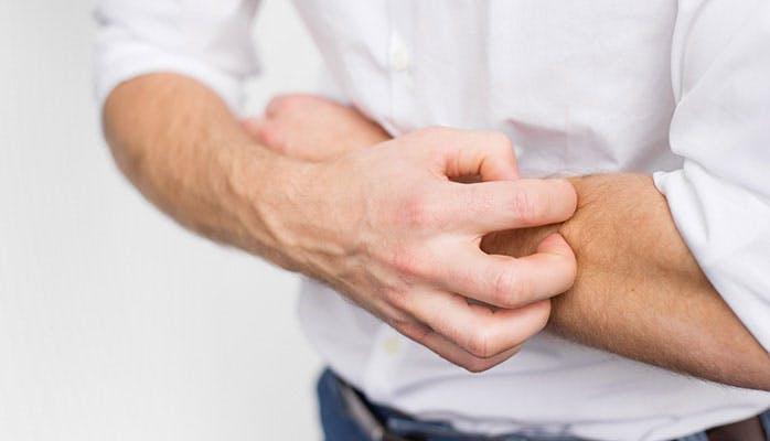 Dlaczego Twoja skóra swędzi podczas gojenia?