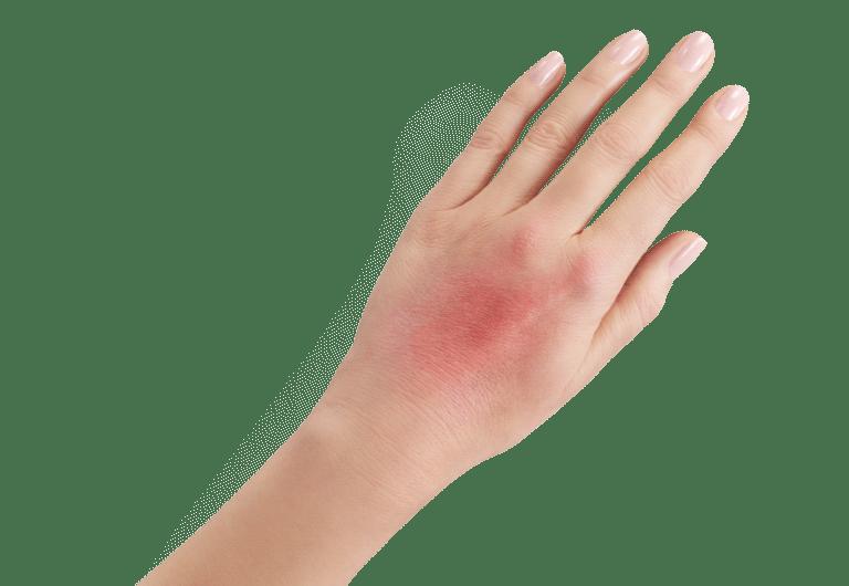 Fenistil żel stosuje sięw reakcjach skórnych związanych z ukąszeniami