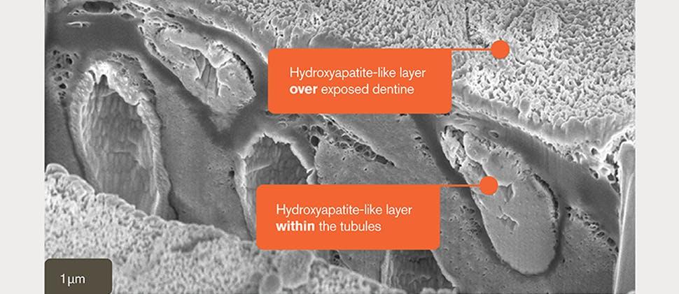 SEM image of hydroxyapatite-like layer