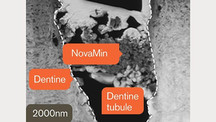 TEM image of dentin at 2000nm
