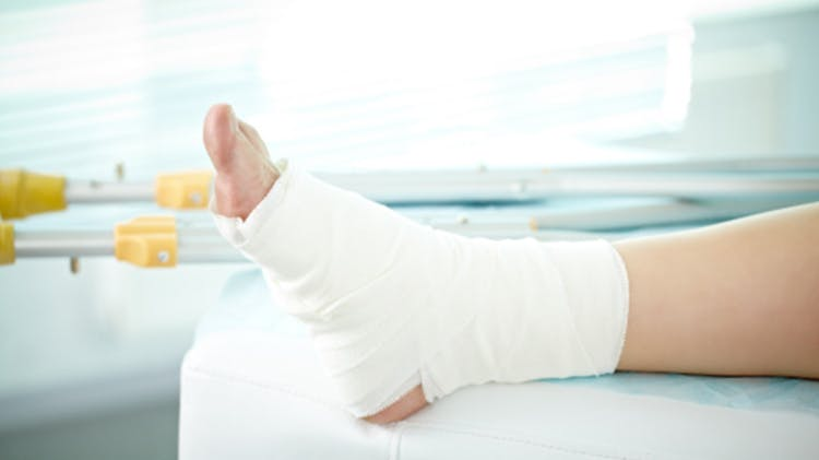 Foot with compression wrap