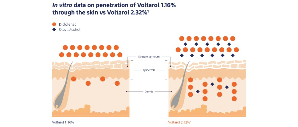 Voltarol skin penetration image