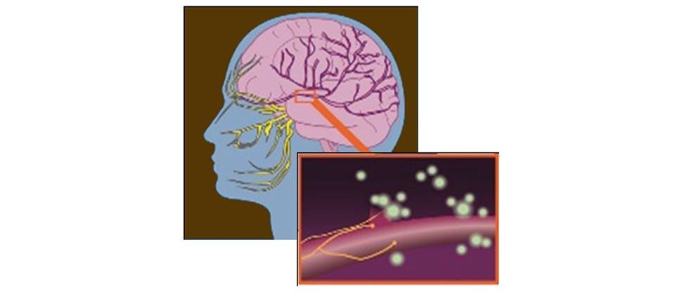 Firing neurons at the trigeminal area