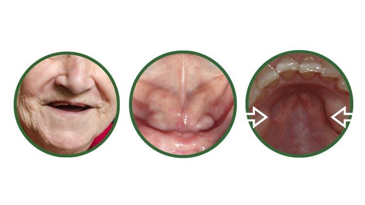 Oral anatomy