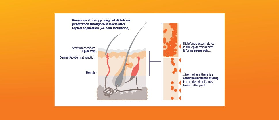 Voltaren® microscopy study