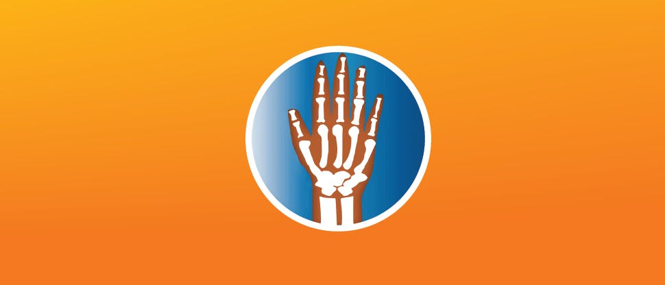 OA Hand Pain Relief
