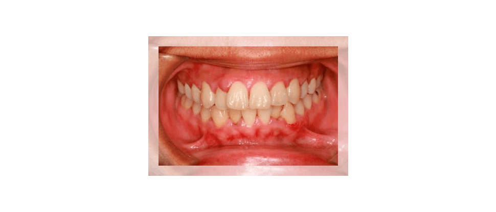 Dental Health Professional speaking with patient about gingivitis