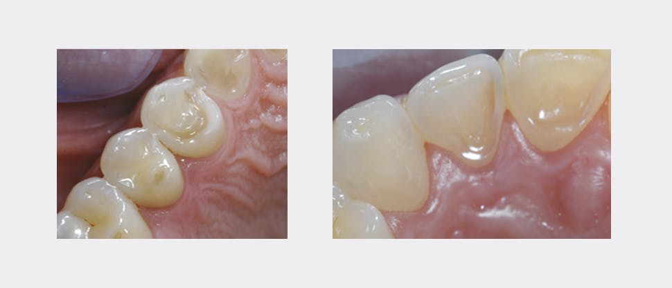 Other signs of enamel erosion