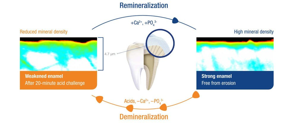 Remineralization and demineralization process after 20-minute acid challenge