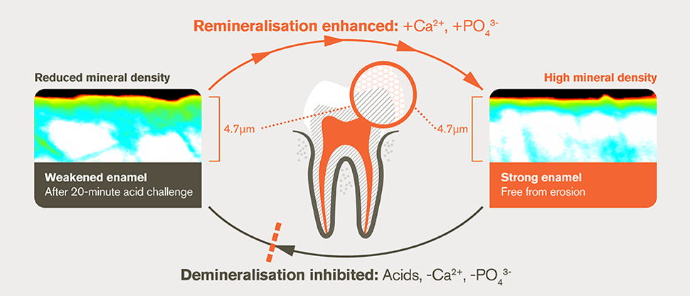 Dual protection of enamel