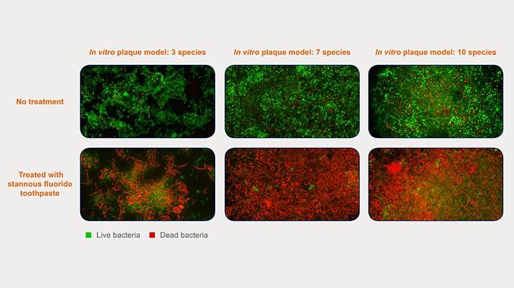 In vitro plaque model