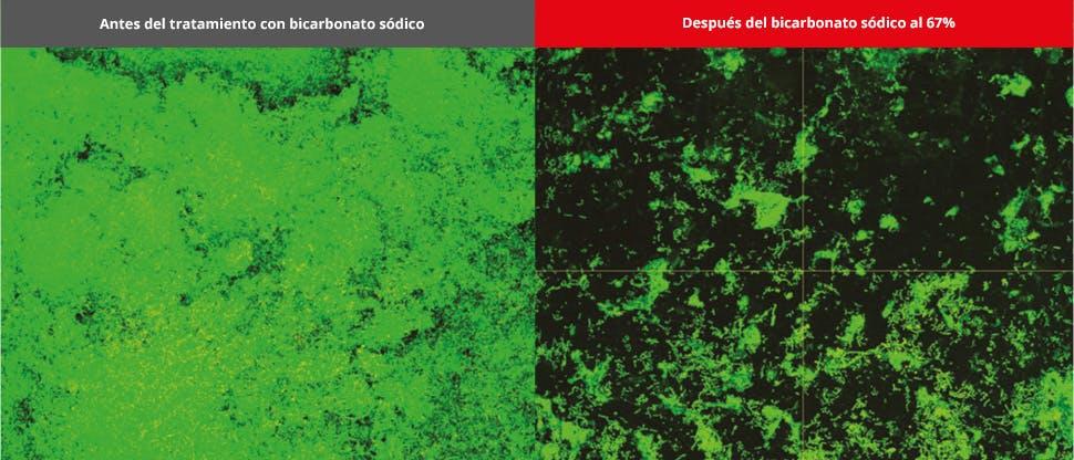 Imágenes de la biopelícula del microscopio confocal láser (CLSM)