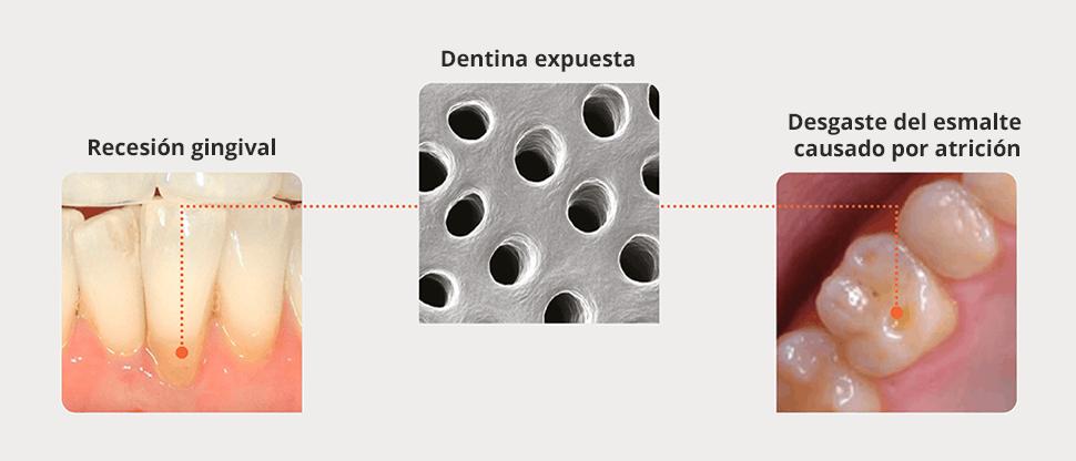 Causas de la dentina expuesta