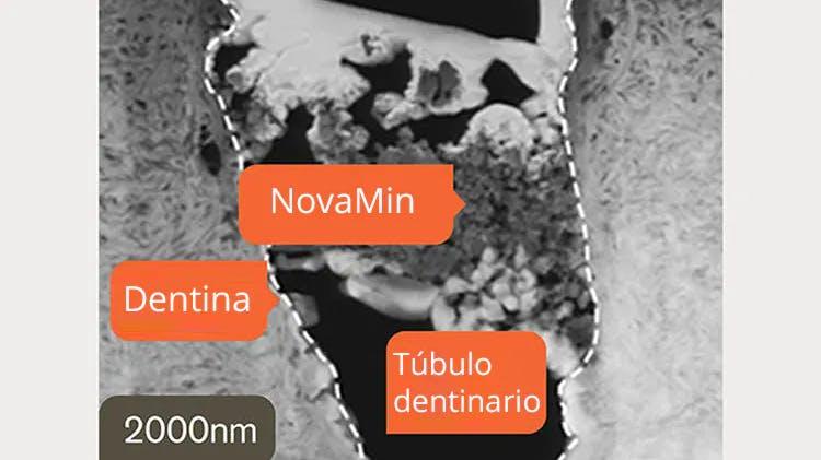 Imagen TEM de la dentina a 2000nm