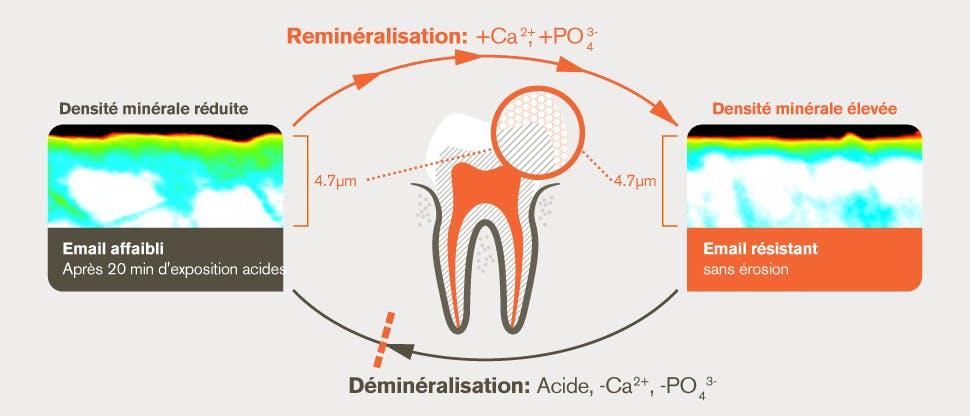 Processus de déminéralisation et de reminéralisation après 20 minutes d'attaque acide