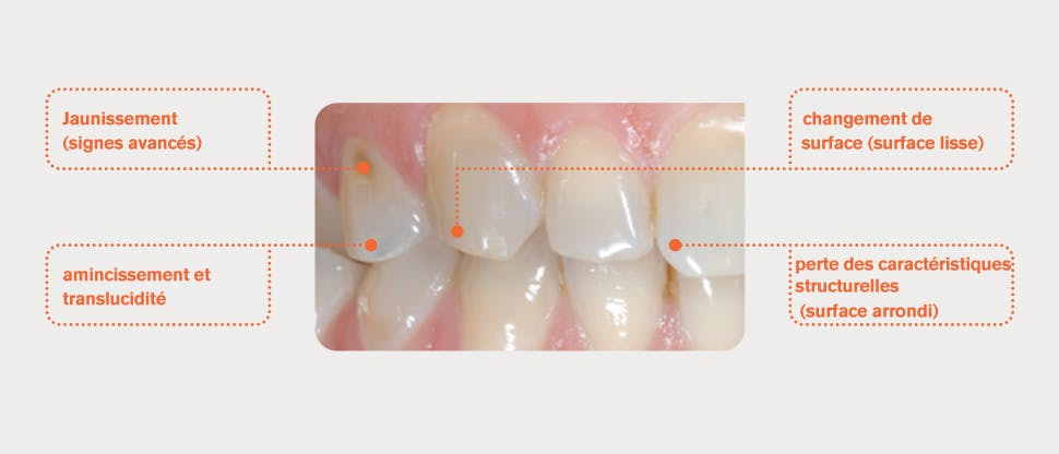 Dents avec émail usé