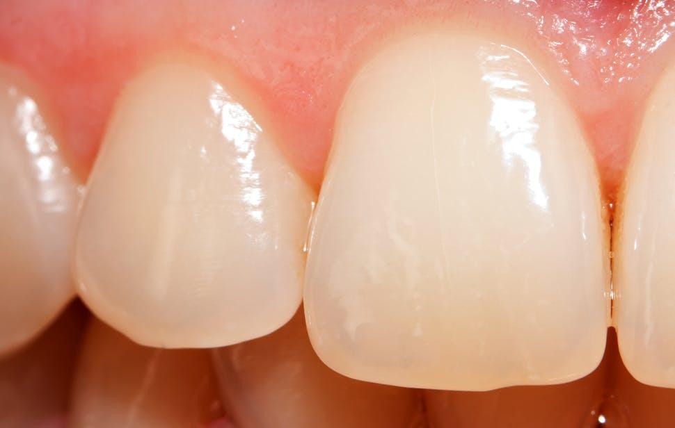 Enamel worn teeth