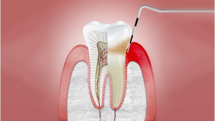 Coupe transversale de gencives avec gingivite