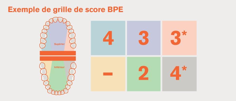 Division EPB de la dentition en sextants et exemple de grilles