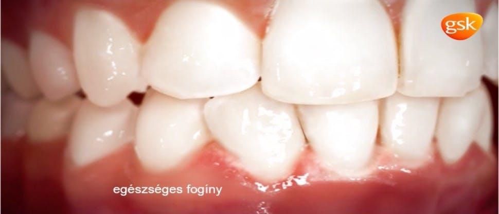 A parodontális betegség mechanizmusai
