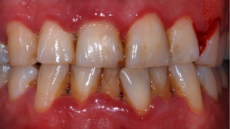 Nekrotizáló fekélyes ínygyulladás, és nekrotizáló fekélyes foggyökérhártya-gyulladás
