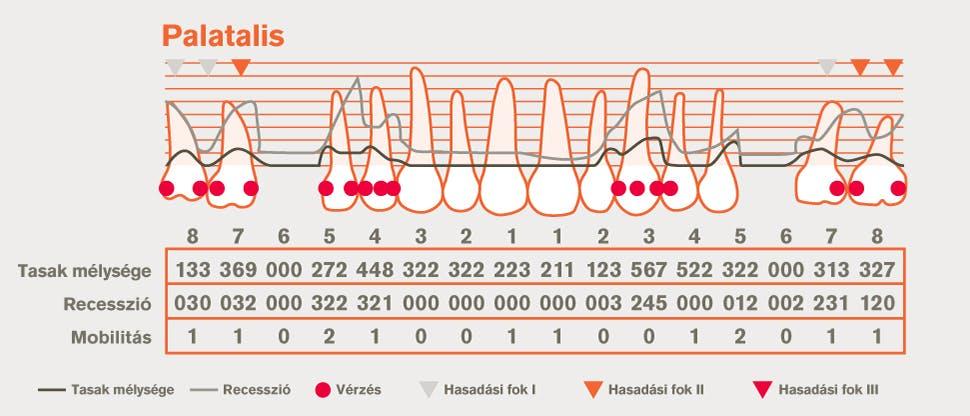 Részletes parodontális ábrázolás