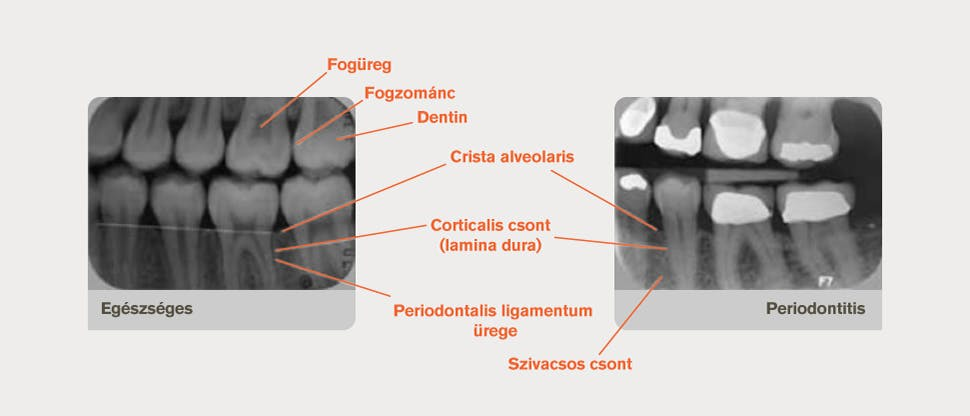 Annotált röntgenfelvétel