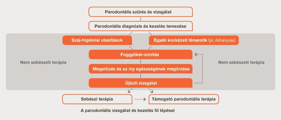 A fogágybetegség vizsgálatának és kezelésének folyamatábrája