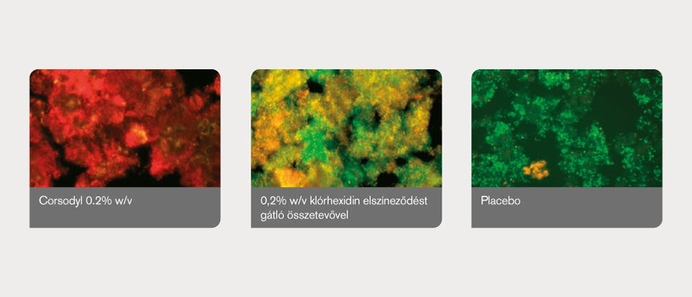 Biofilm a lepedékben, képanalizáló program segítségével meghatározva