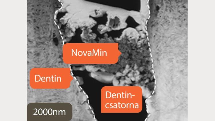Dentinről készült TEM felvétel, 2000 nm