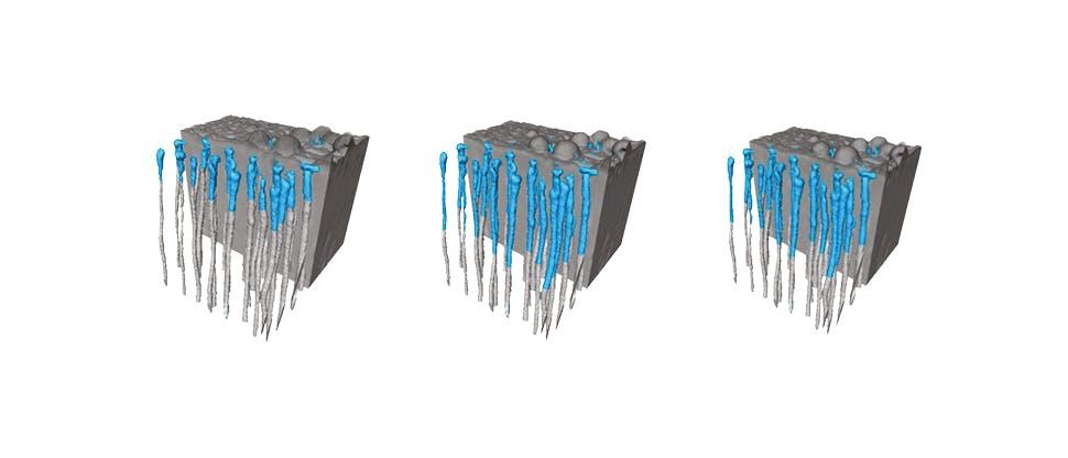 Profondità media di occlusione nei campioni di dentina trattati con Sensodyne Repair e Protect Deep Repair