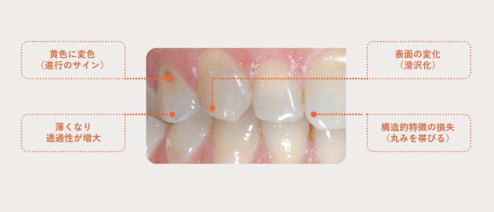 エナメル質が損耗した歯