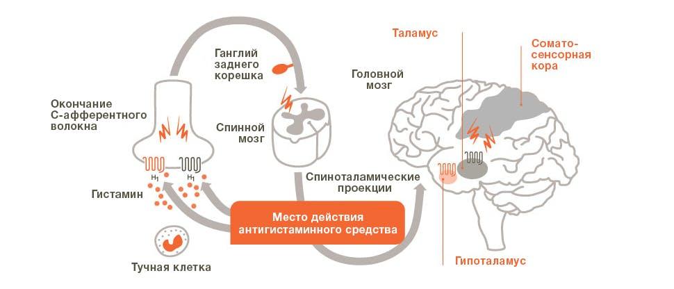 МД зуда, вызванного гистамином