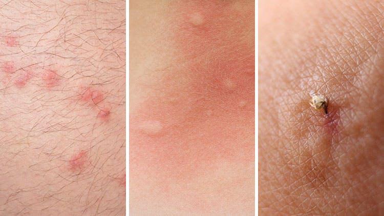 Различные изображения укусов насекомых