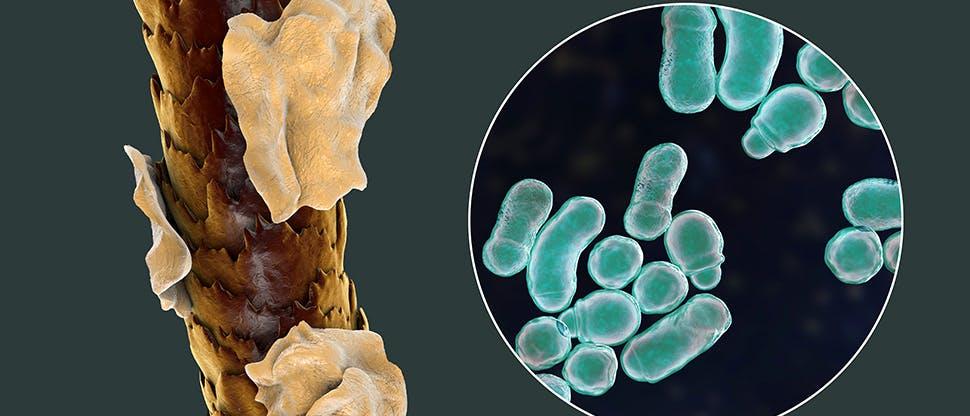 Фазы развития себорейного дерматита
