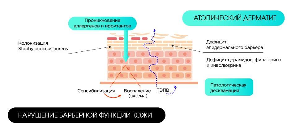 Нарушение барьерной функции кожи.