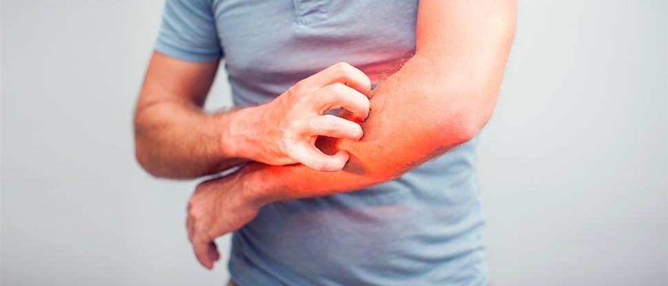 Появление атипического дерматита