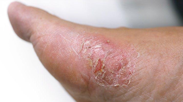 Нога, пораженная дерматофитией стоп по типу «мокасин»