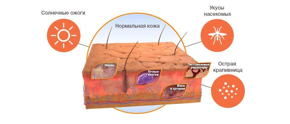 Графическое изображение влияния триггеров и высвобождение гистамина в коже