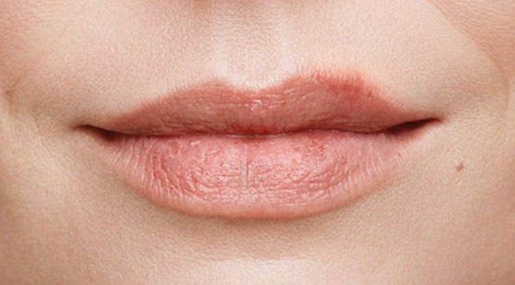 ранняя стадия герпеса губ