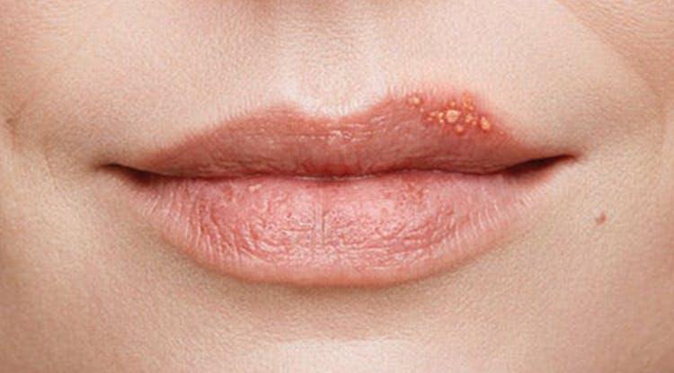 стадия образования пузырьков при герпесе губ