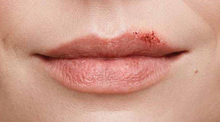 стадия образования корочек при герпесе губ