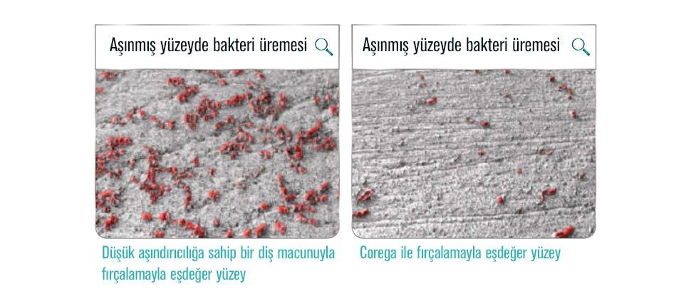 Diş protezlerinin aşınmış yüzeyleri