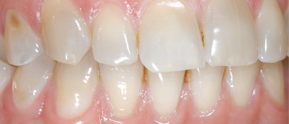 Diş minesi aşınması görseli