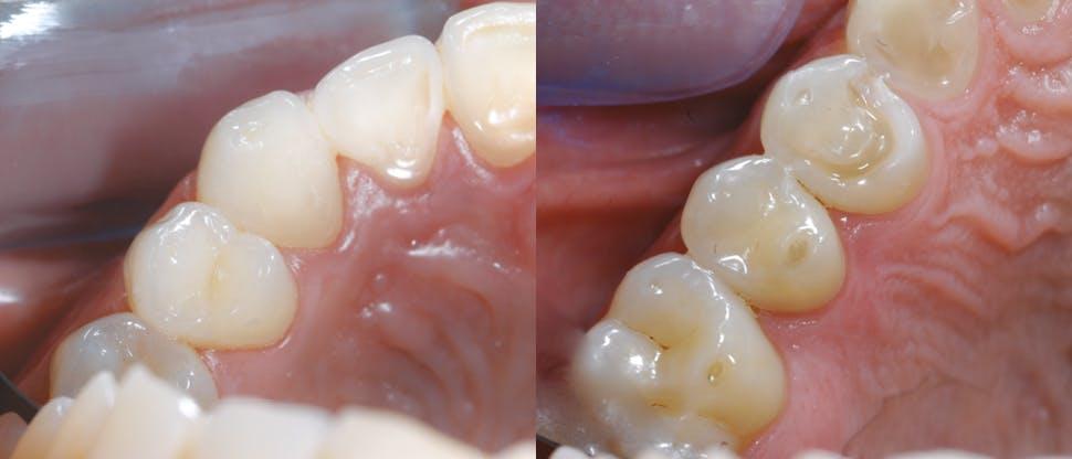 Diş minesi aşınmasının diğer bulguları