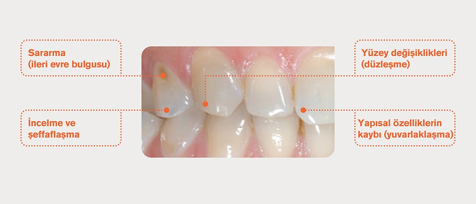 Minesi aşınmış dişler