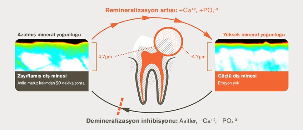 Diş minesinde ikili koruma